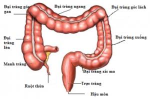 Viem Dai Trang kich Thich 300x198 Những điều cần biết về hội chứng ruột kích thích