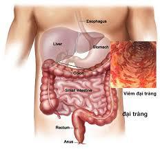 index Gánh nặng kép khi mắc viêm loét đại tràng chảy máu