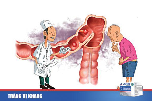 trangvikhang33 Phòng ngừa và điều trị bệnh viêm đại tràng mãn tính