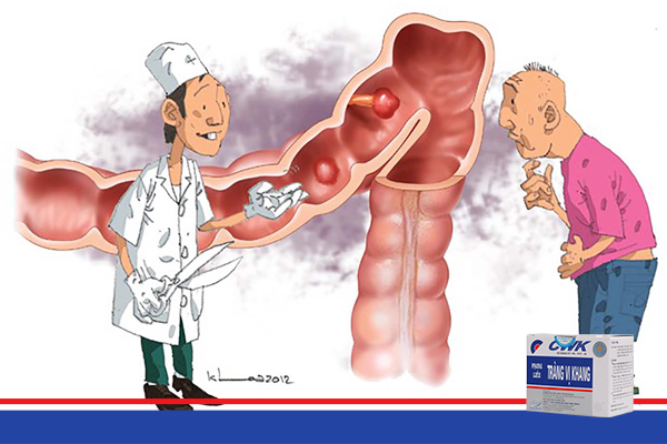 viem dai trang man tinh1 Thực phẩm bẩn – Kẻ thù của người mắc viêm đại tràng